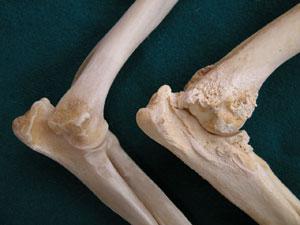 a jobb könyökízület ízületi kezelése ízületi fájdalom a karban és a hónaljban
