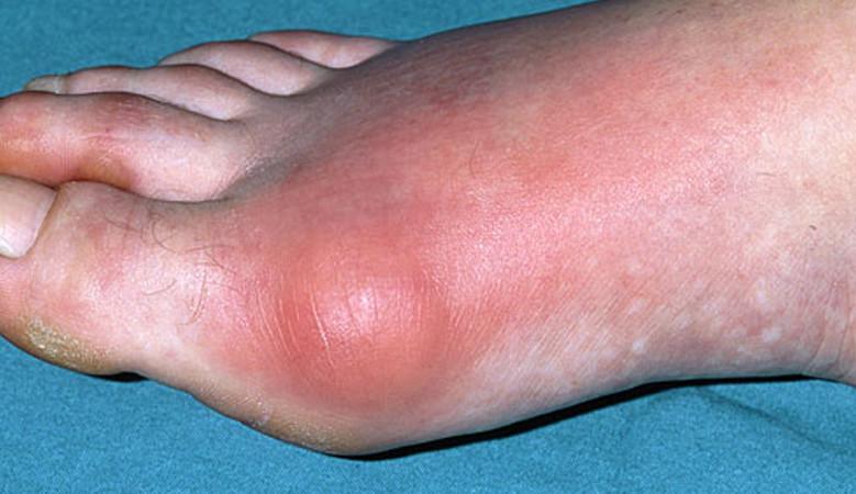 allergiák ízületi gyulladások kenőcsök a csípőízület artrózisának kezelésében