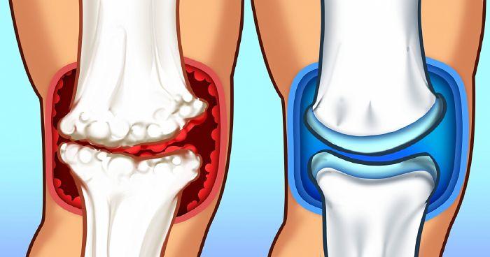 ammónia ízületi fájdalmak esetén