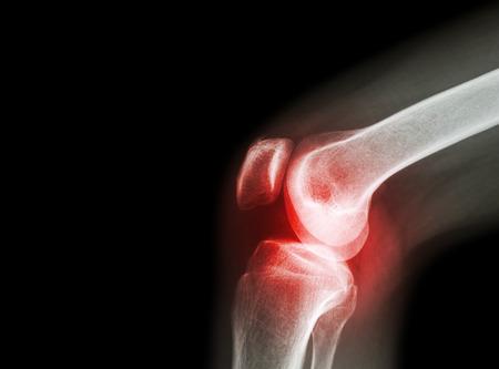 arthrosis új kezelések