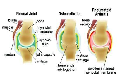 A porckopás (artrózis) kezelési lehetőségei • Ezerjófű Gyógynövénybolt