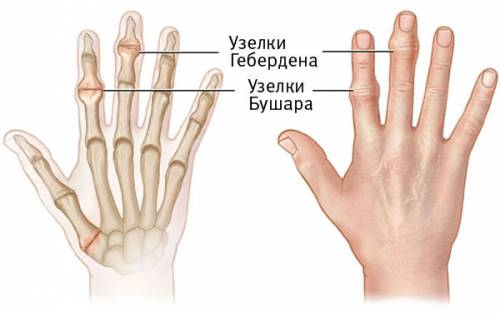 az ujjak falának deformáló artrózisának kezelése