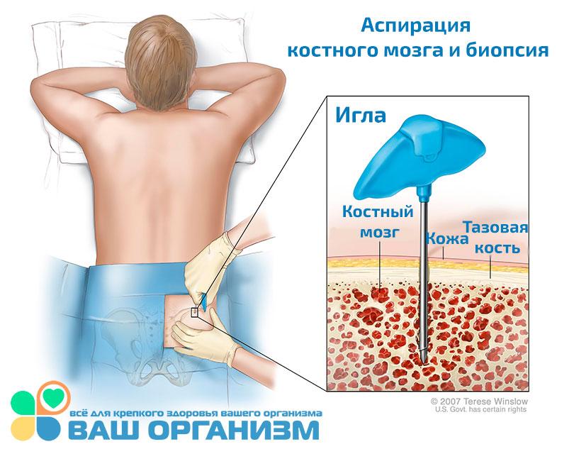 ízületi kezelés hemlock tinktúrával