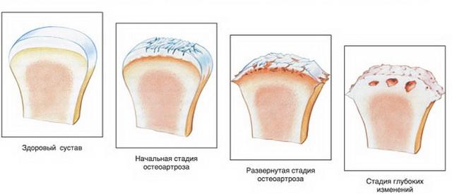 térdízületi meniszkusz elmozdulása