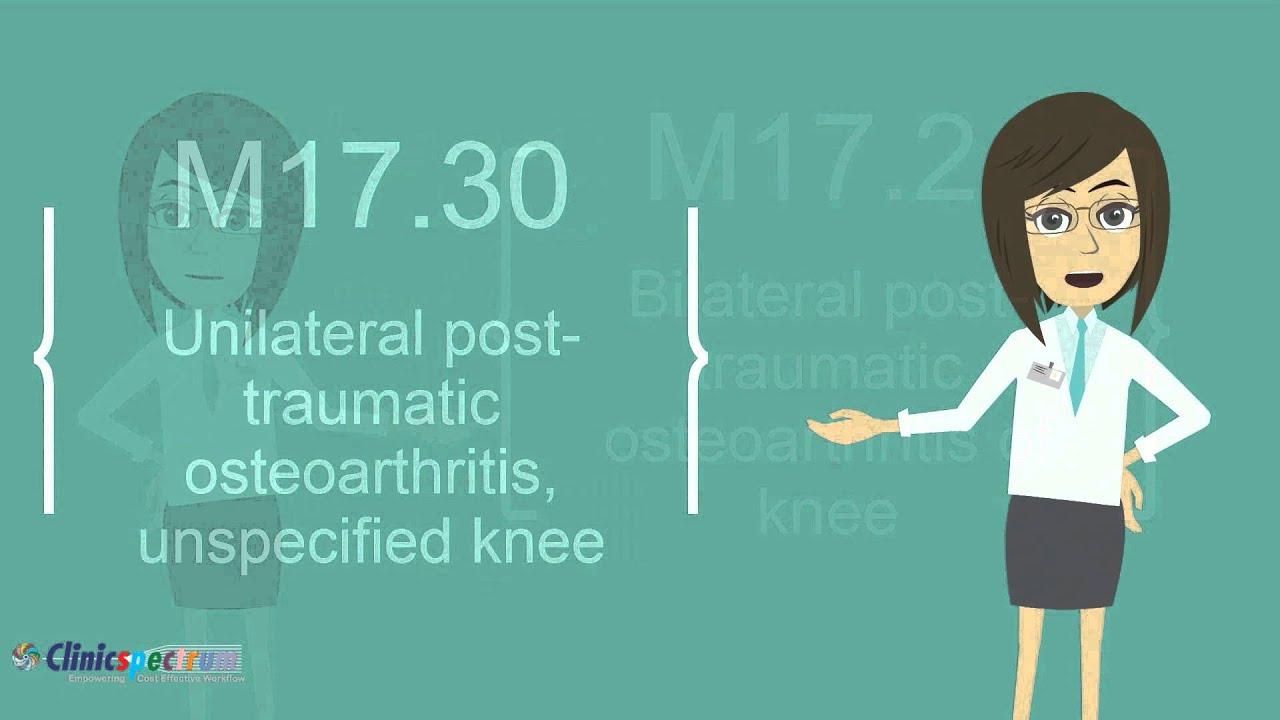 osteoarthritis knee icd 10 ízületi kezelés pirula
