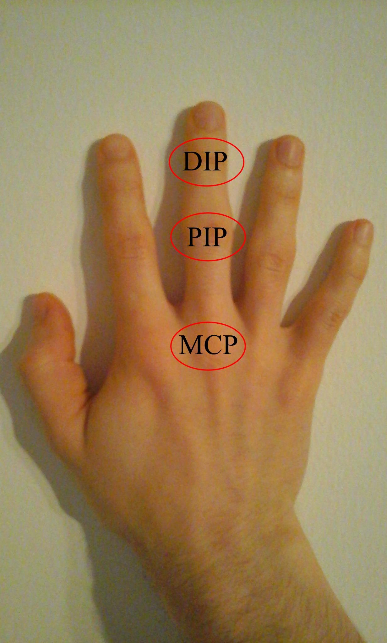 mi a teendő, ha a kéz izületi gyulladása van