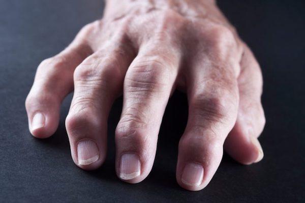 kötőszöveti betegség ízületi károsodással