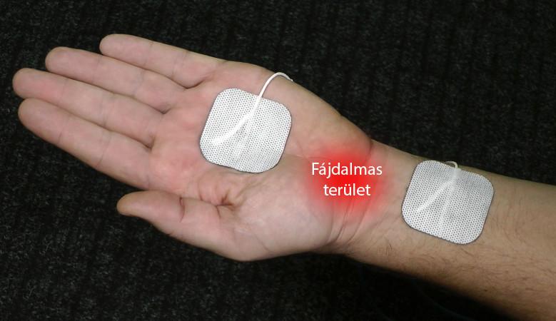 artrózisos kezelés eszközökkel
