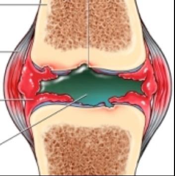 csípőízületi érzéstelenítés feltörő térdízületek