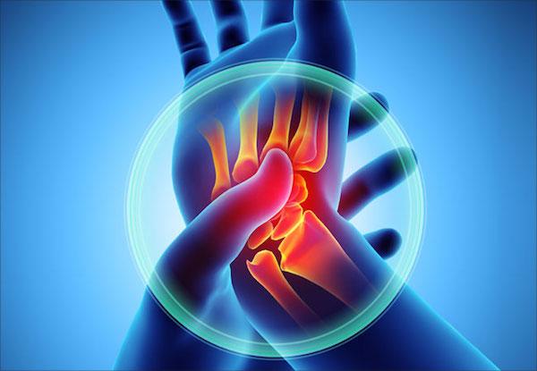 cukorbetegség ízületi fájdalom glükózamin ízületi kenőcs