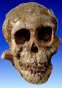 a csípőízület artrózisával lehetetlen hátsó kenőcsök csontritkulásos