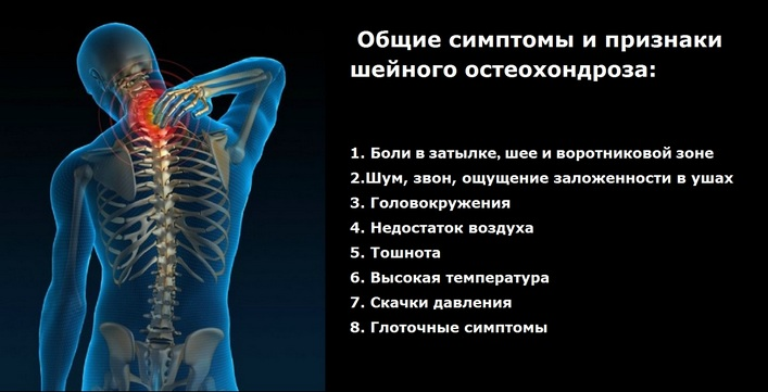 csontritkulásos gyógyszerek az osteochondrozissal szemben