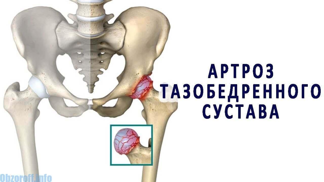 artrózis és kezelésének módszerei