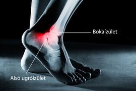 Boka fájdalom, lábduzzadtság