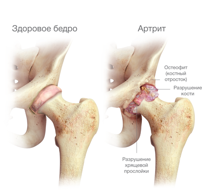 deformáló artrózis kezelése 1-2 fokkal