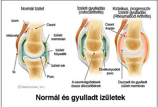 gyulladásos térdízületi gyulladás