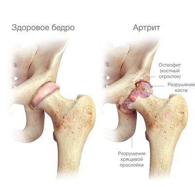 fájdalom a csípőízület gyulladásában