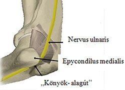 kronikus izuleti gyulladása aki a könyökízület bursitisét kezeli
