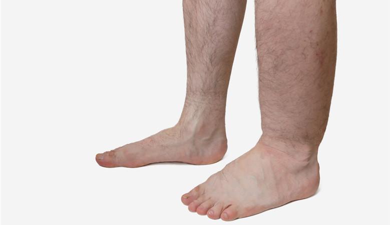 duzzadt láb gyógymódok
