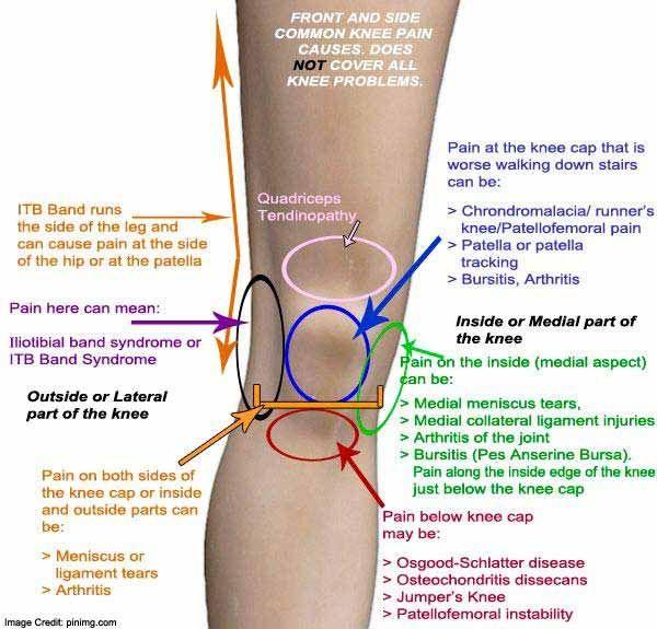 Osgood-Schlatter betegség serdülőknél: okok, tünetek, kezelés