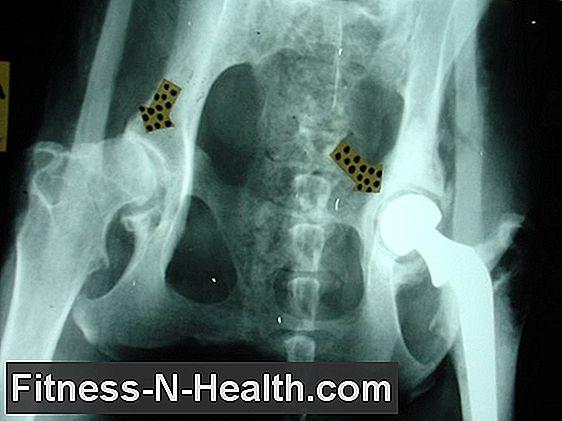 csípőízület coxarthrosis vagy arthrosis kezelése