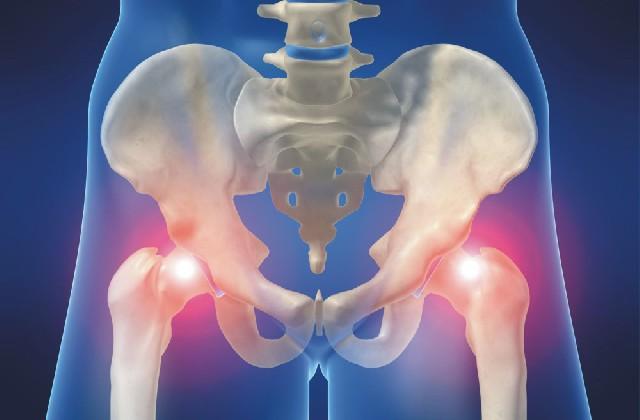 csípő fájdalom ízület chondoprotektív készítmények térdízületekre ár