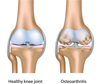 fájdalom a térdízület tünetei ketorol ízületi betegségek kezelésére