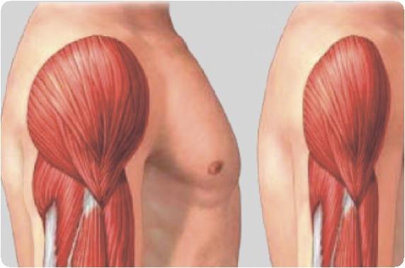 fertőző allergiás betegség ízületkárosodással bal vállfájdalom okai
