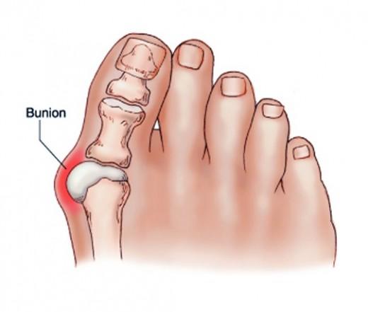 fájdalom a boka egy tinédzser az 1 metatarsális ízület artrózisa