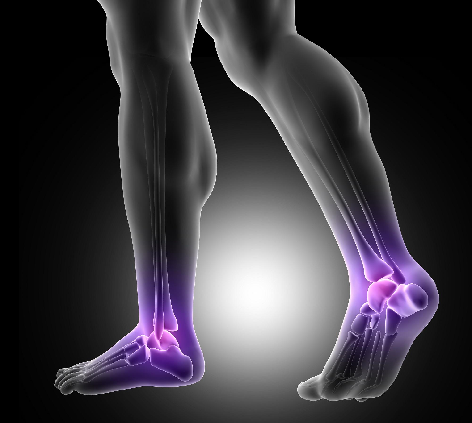 fájdalom az alsó végtagok térdízületeiben ízületi gyulladás és ízületi gyógyítás kezelése