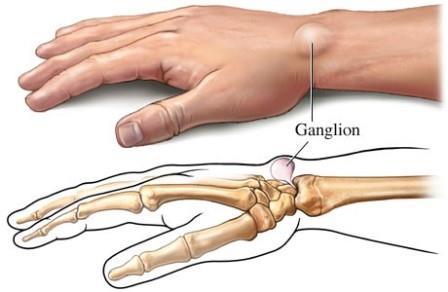 csontok és ízületek onkológiai betegségei