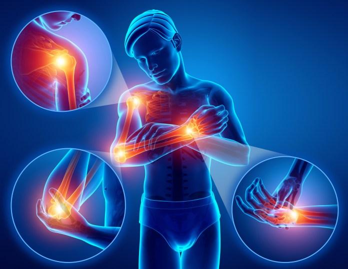 argo ízületi kezelés hosszú az ízületi fájdalomtól