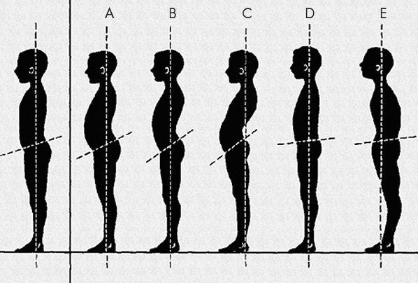 ágyéki lordosis kiegyenesedett hogyan lehet kezelni az artrózist a vállon