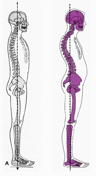 ágyéki lordosis kiegyenesedett a láb csontok és ízületek károsodása
