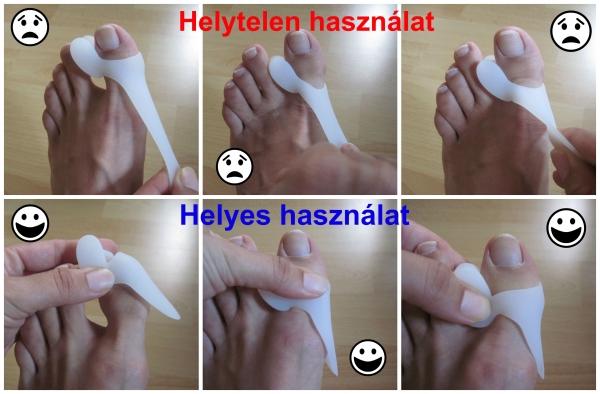 hogyan fáj a nagy lábujj ízülete