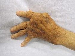 hogyan lehet enyhíteni a fájdalmat a csípőízületek artrózisával