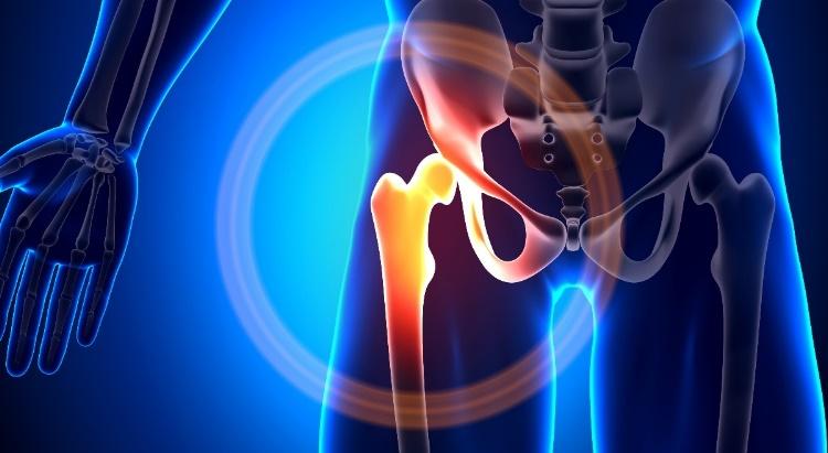 Béres mozgás – Ne várjon csípőre tett kézzel, tegyen csípőízülete védelméért!