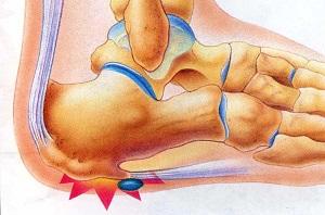 posztraumás ujj artritisz hogyan néz ki a térdízület