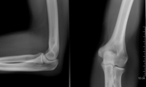 hogyan lehet enyhíteni a fájdalmat a csípőízület artritiszével ízületi fájdalom könyökkezelés