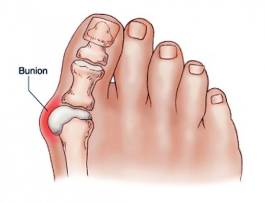 kenőcs a nagy lábujj ízületére ízületi betegségek std-kkel