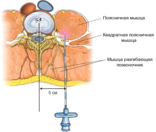 kenőcsök a méhnyak osteochondrozisának súlyosbodására