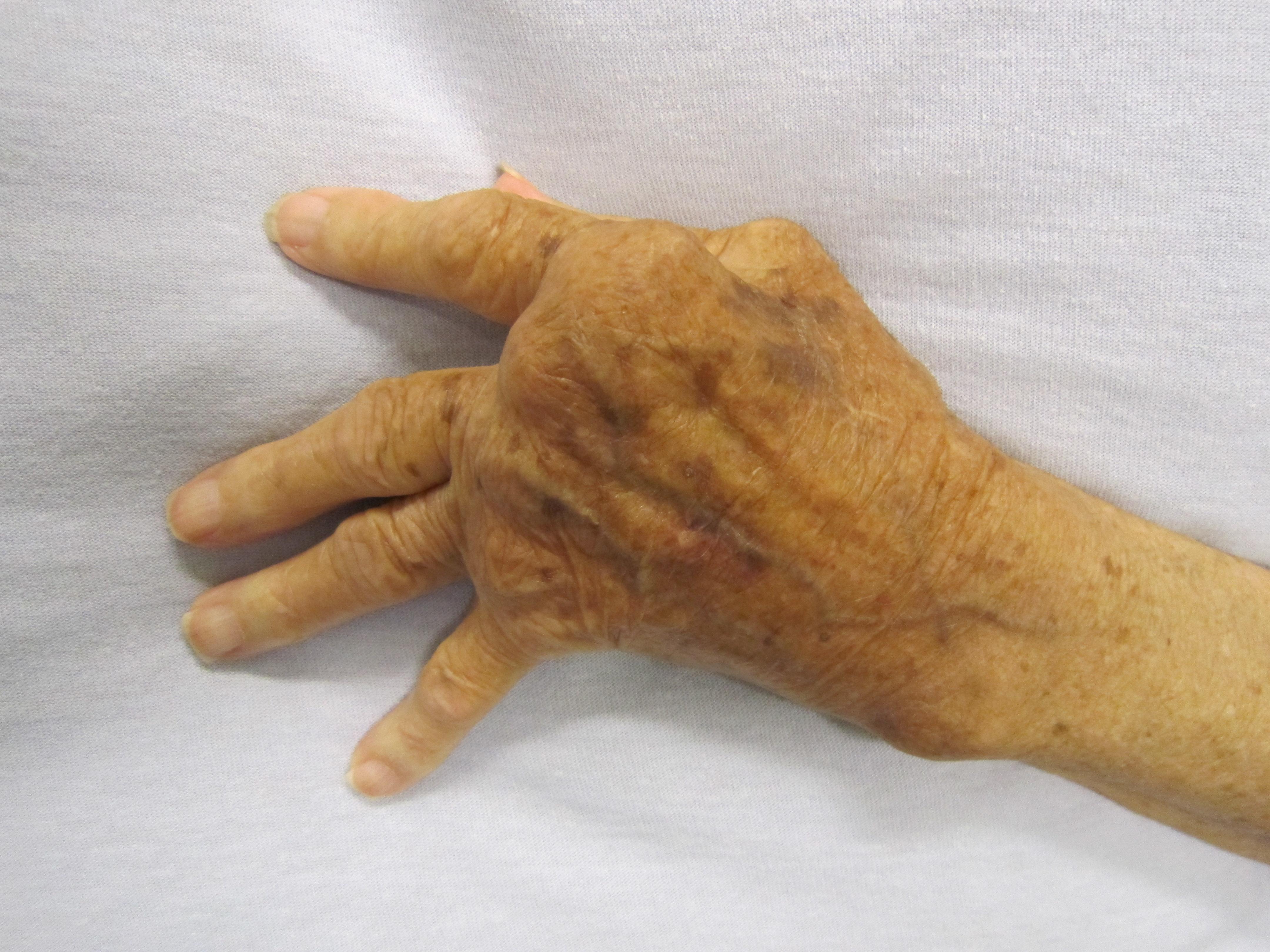 közös röntgenkép rheumatoid arthritisben