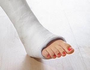Kukorica kúp formájában a sarokon vagy a lábon