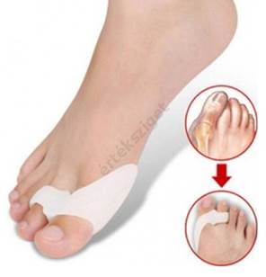 lábujjak artritisz tabletták kenőcsök és gélek izmokból és ízületekből