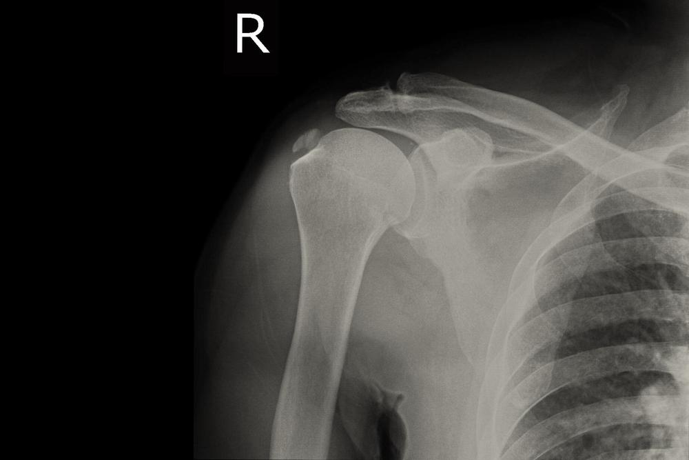 a vállízület-készítmények deformáló osteoarthrosisának kezelése