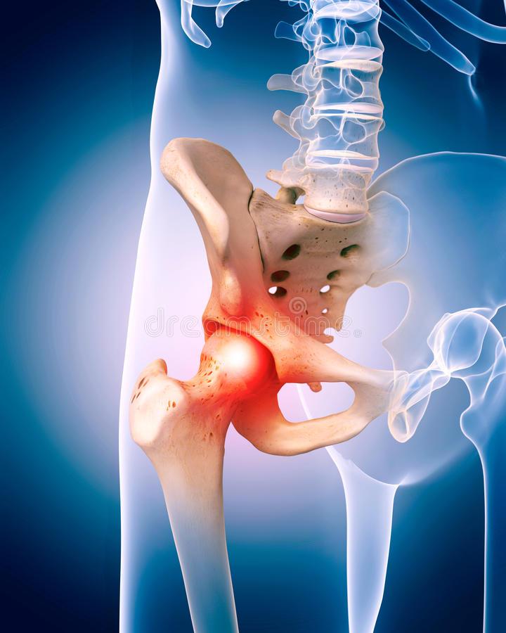 éles fájdalom a csípő izületeiben közös drogcél