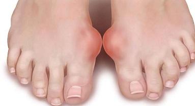 mi gyógyítja a lábak ízületeit