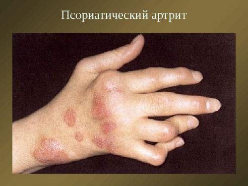 mint a kezek ízületeinek kezelése az ízületek ropognak és fáj, mi az