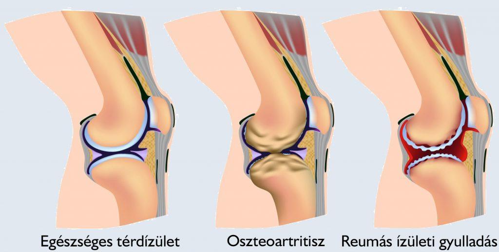 kenőcs a csípőízület coxarthrosisához kenőcs a térdízület szögeiben jelentkező fájdalomra