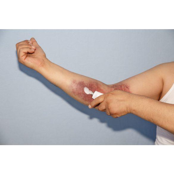 nagy ízületek traumás sérülései csípőfájdalom ízületek